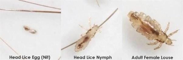 Pictures Of Lice Eggs Best Of Chemical Free Headlice and Nit
